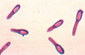 immagine batteri
